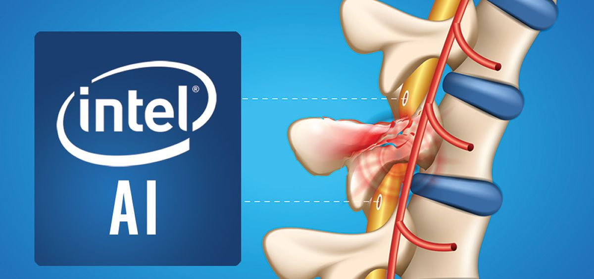 Intel y Brown University implementan inteligencia artificial para recuperar el movimiento. (Foto. Intel)