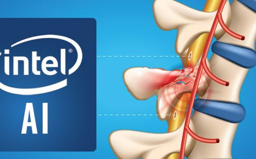 Intel y Brown University implementan inteligencia artificial para recuperar el movimiento