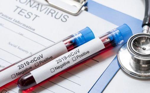 Los laboratorios farmacéuticos aceleran su lucha contra el coronavirus: 20 vacunas en desarrollo
