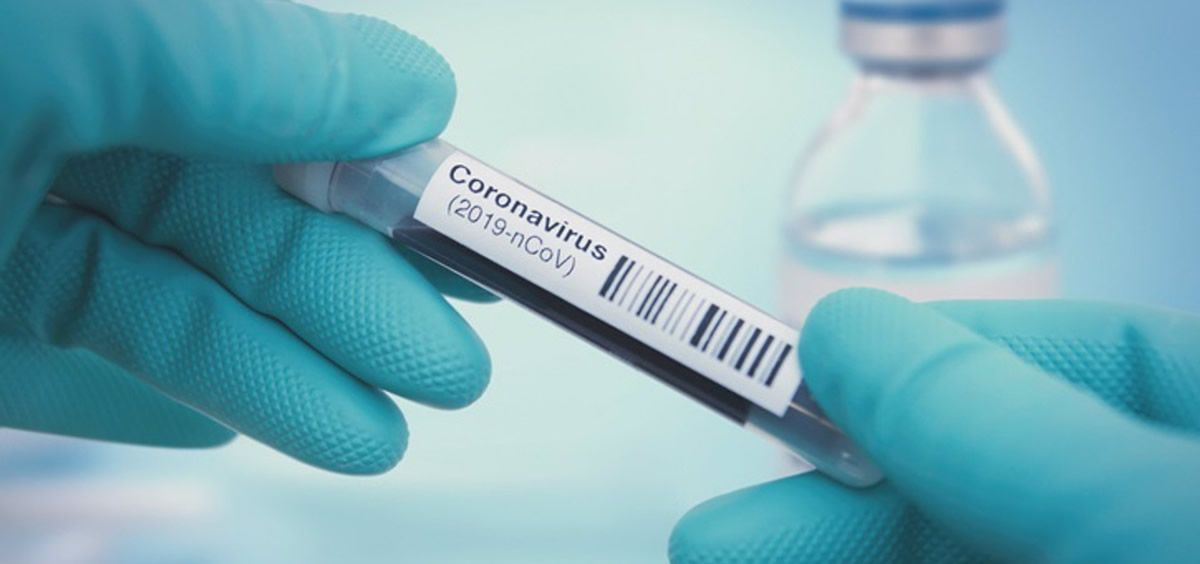Imagen de recurso del coronavirus (Foto. NARVIKK)