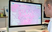 Los laboratorios de patología implementan el tele diagnóstico con Philips durante la Covid