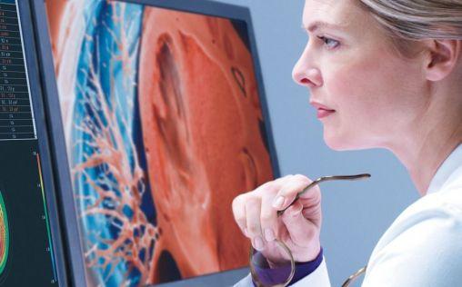 Philips presenta la suite de flujo de trabajo de radiología automatizada y habilitada para IA