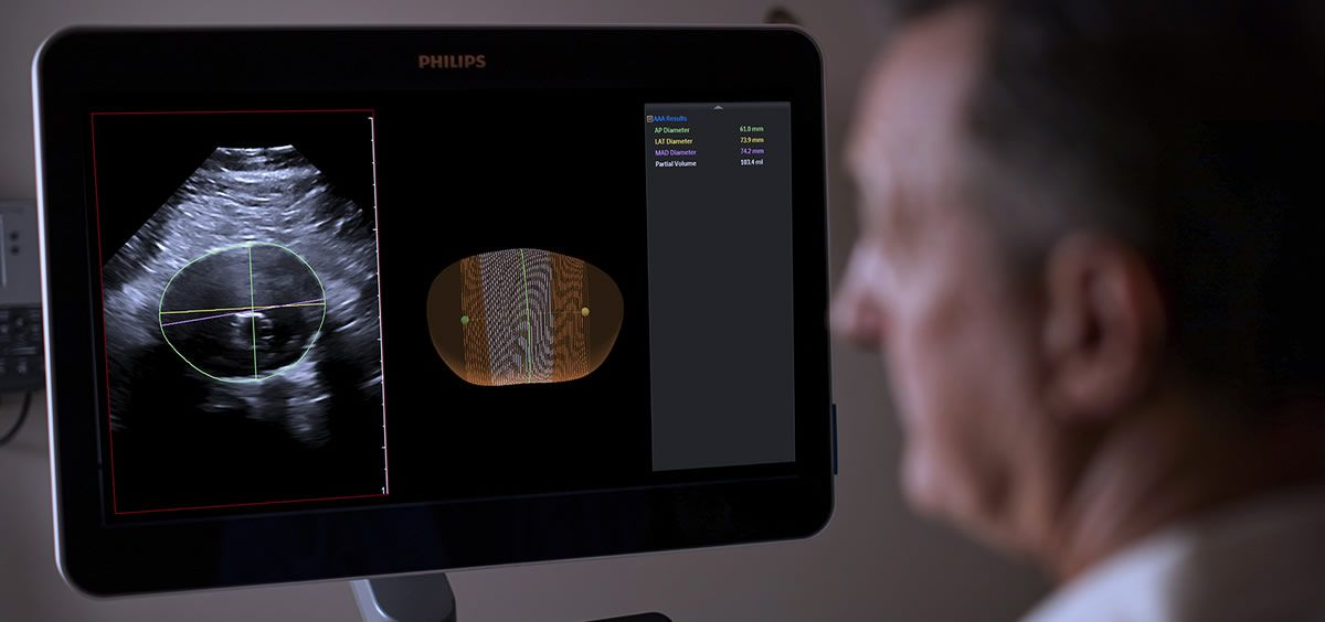 Philips logra avanzar en la vigilancia de los aneurismas de la aorta abdominal con el ultrasonido 3D