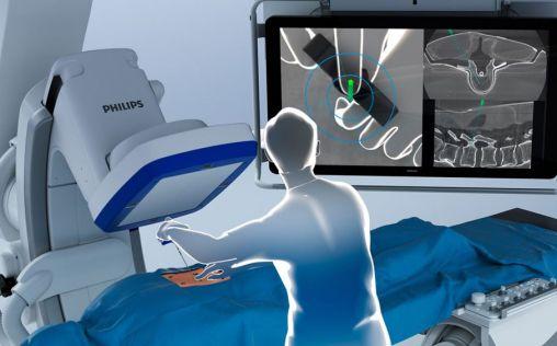 Philips presenta ClarifEye, un sistema de navegación quirúrgica por realidad aumentada