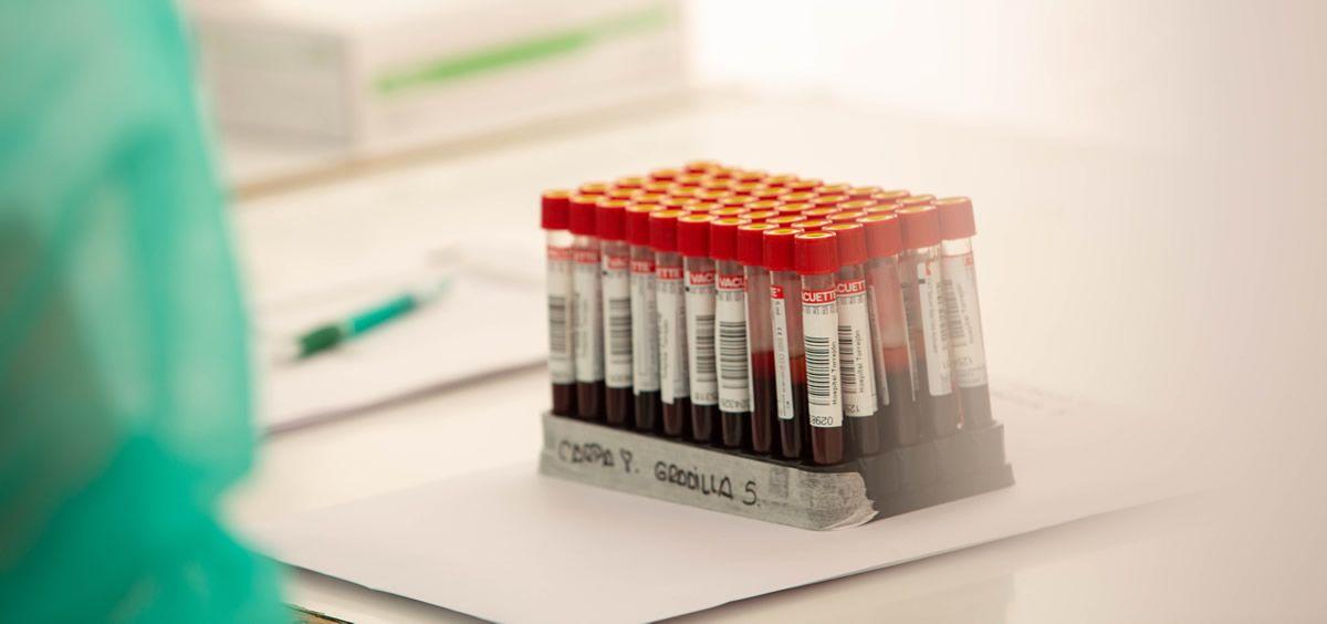Ribera Lab facilita el deporte seguro con pruebas Covid