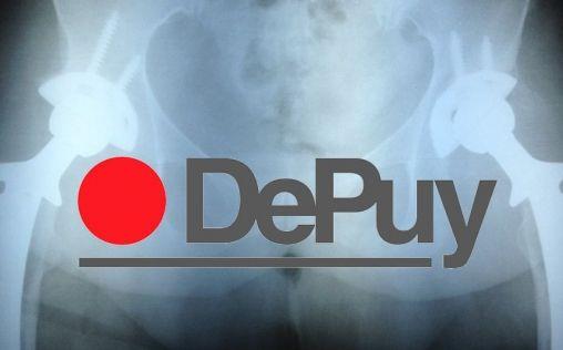 DePuy Orthopaedics abonará 247 millones de dólares por problemas con sus implantes de cadera