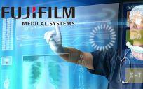 Fujifilm lanza nuevos endoscopios para mejorar la visualización.