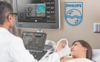 Philips lanza una solución de ultrasonido mamario más eficiente