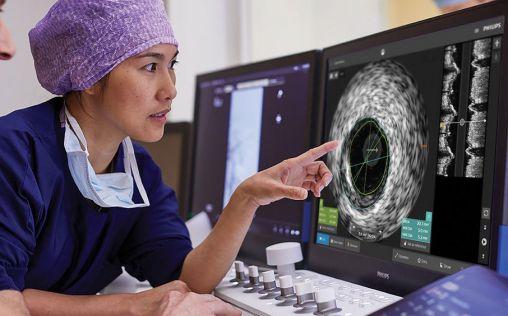 Philips lanza una nueva plataforma de aplicaciones de intervención IntraSight