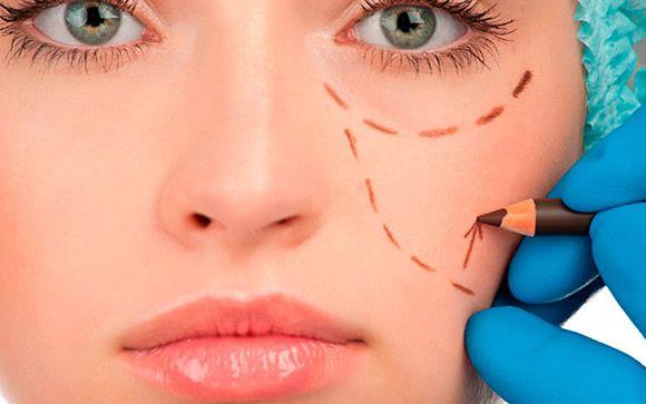 Infiltraciones, el tratamiento que atenúa los cambios faciales