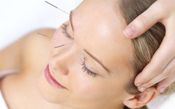 Acupuntura facial, una técnica natural contra el envejecimiento