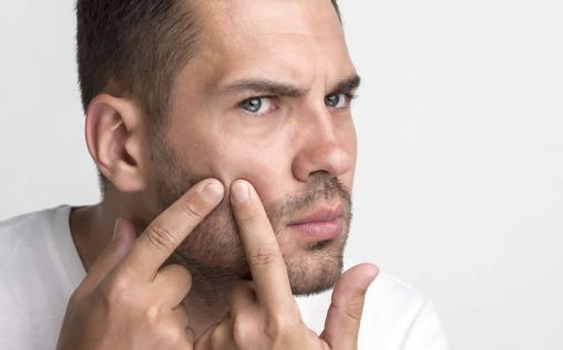 Olvídate del acné de manera rápida, eficaz y segura