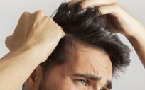 A partir de los 25 años, uno de cada cuatro hombres comienza a sufrir alopecia (Foto. Freepik)