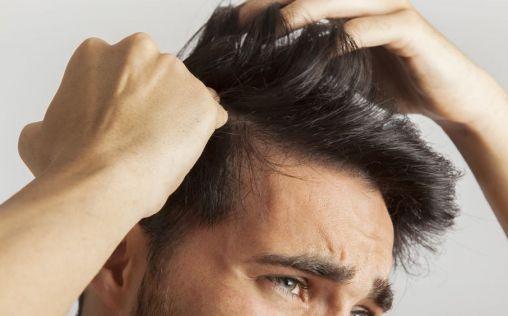 España, el segundo país del mundo con mayores índices de alopecia en hombres