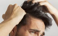 La alopecia es uno de los problemas más frecuentes entre los hombres (Foto. Freepik)