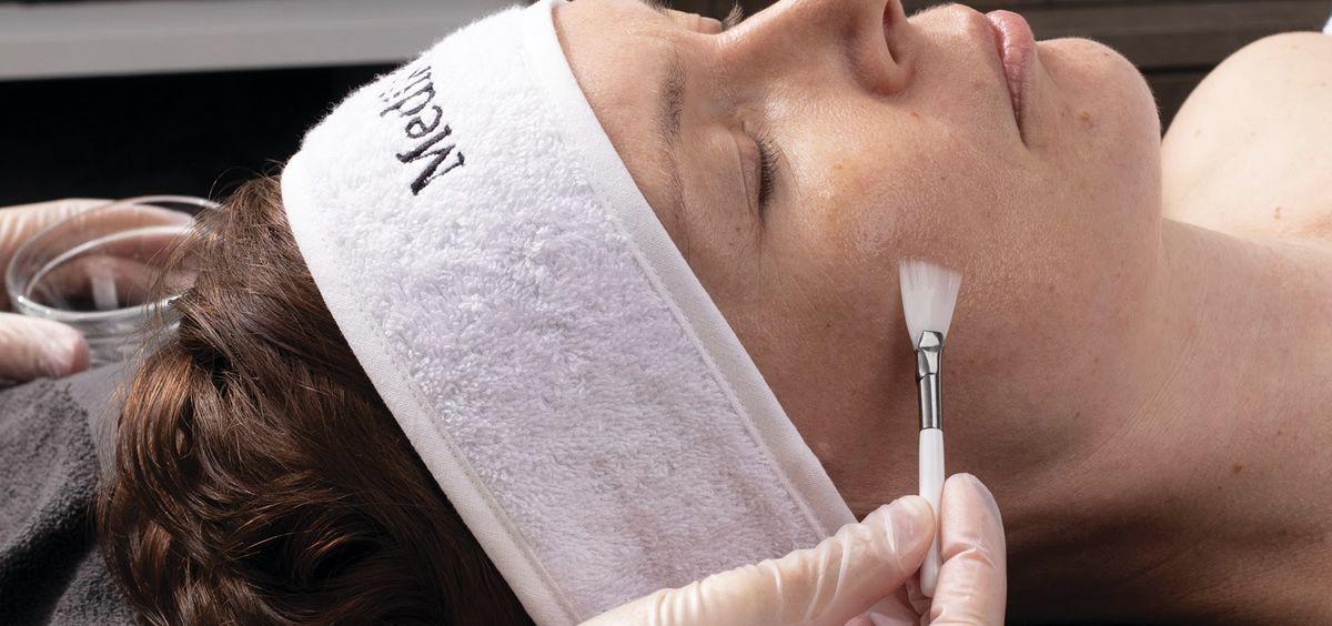 Los peelings ayudan a mantener la piel sana (Foto. Estetic)