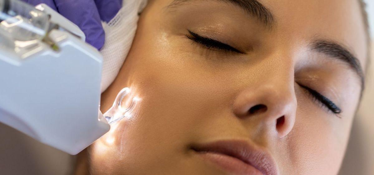 Tratamiento para el acné (Foto. Estetic)