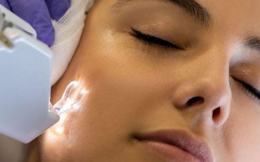 ¿Cómo eliminar las cicatrices del acné?