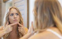 Cuidado del acné (Foto. Freepik)