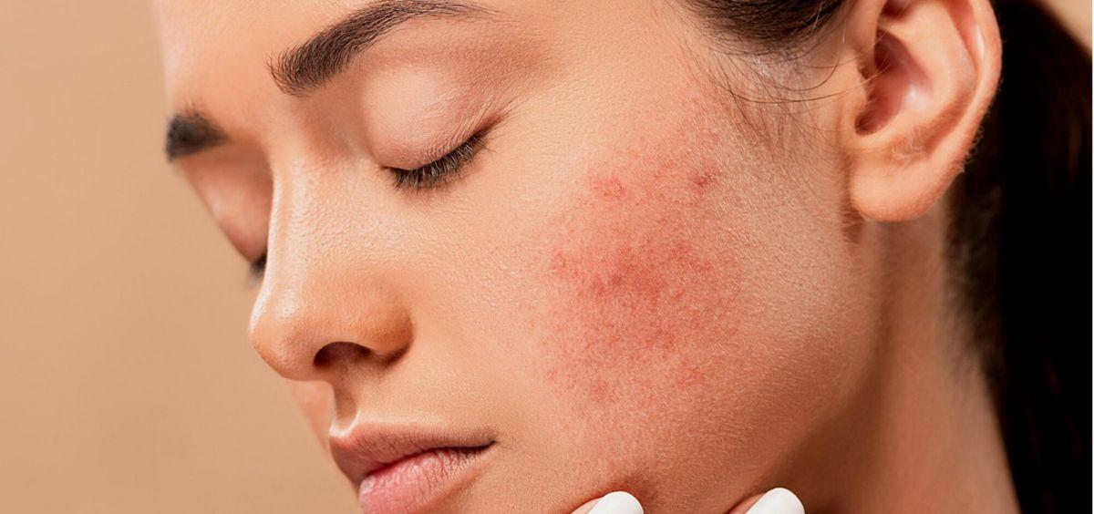 Cuidado de la piel con acné (Foto, Estetic)