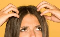 Cuero cabelludo graso (Foto. Estetic)