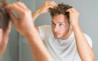 Alopecia e implante capilar