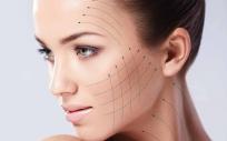 Hilos tensores con efecto lifting facial
