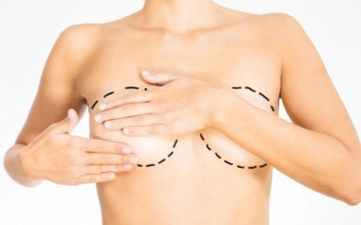 ¿Qué te puede pasar después de una operación de pecho?