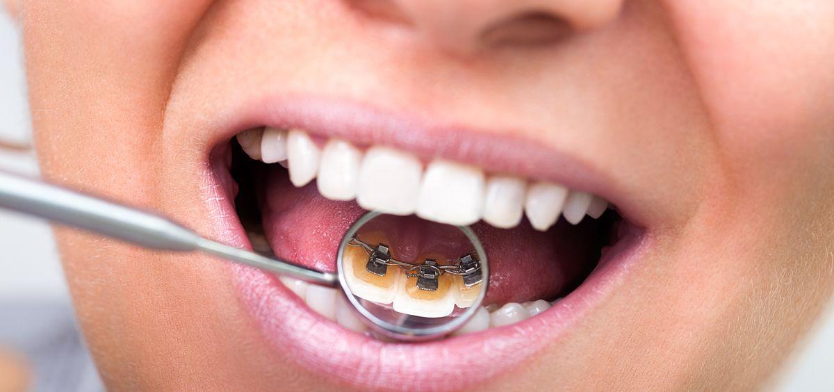Existen cinco problemas dentales muy comunes entre la población