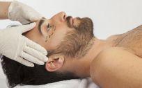 Los hombres piden mucho eliminar las bolsas de los ojos, reducir la papada y mejorar otros aspectos como la forma de las orejas y la nariz