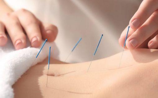 Puntos claves acupuntura para adelgazar