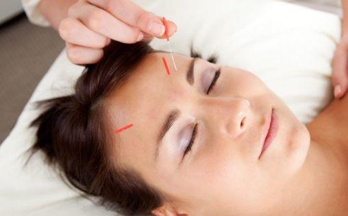 Acupuntura facial, la técnica para rejuvenecer el rostro