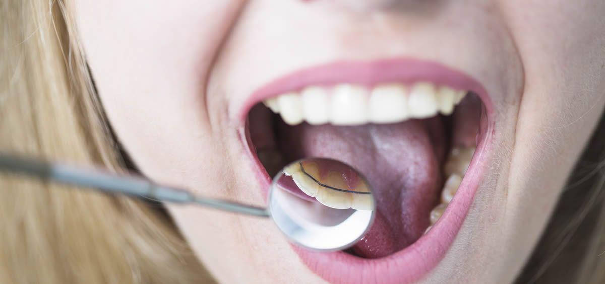Existen distintos tipos de ortodoncia según las necesidades del paciente