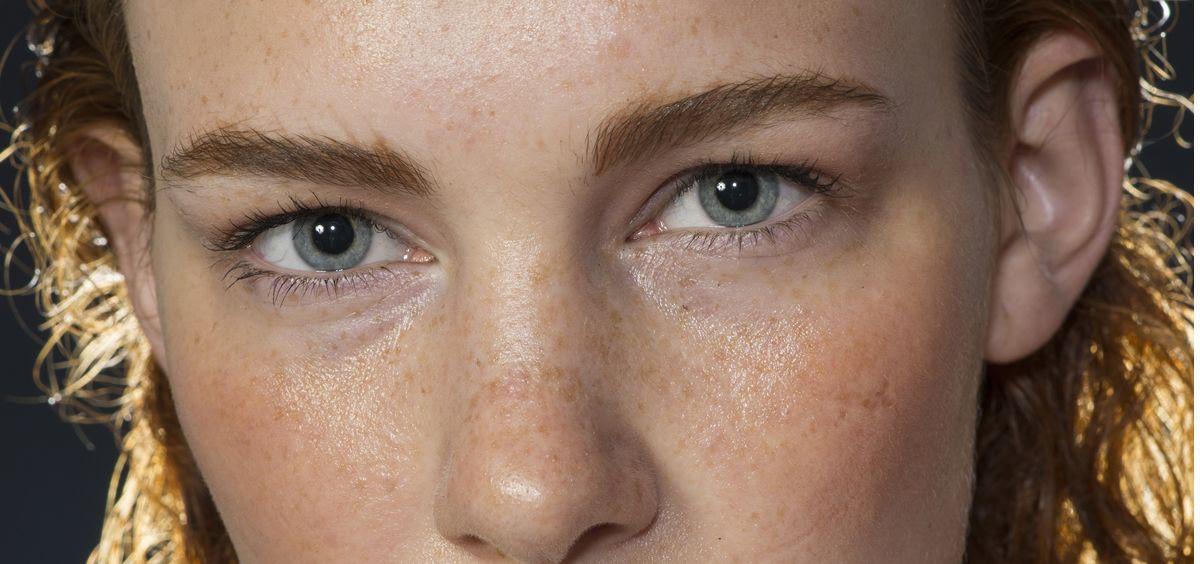 Las pecas aparecen cuando la melanina, el pigmento que da color a la piel, se acumula debajo de esta