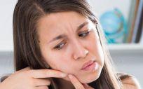 La relación entre el cambio de estación y la aparición de brotes de acné es un hecho