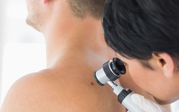 Las diez enfermedades más comunes de la piel