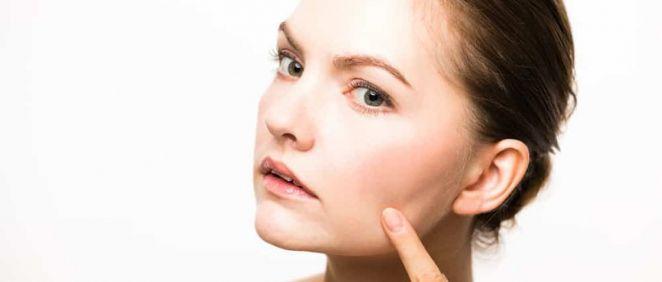 La rosácea es una enfermedad que cursa con brotes que afecta principalmentea las zonas centrales del rostro. (Foto. Pixabay)