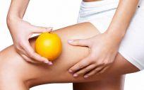 La celulitis se da, sobre todo, en periodos de cambios hormonales como la adolescencia o un embarazo