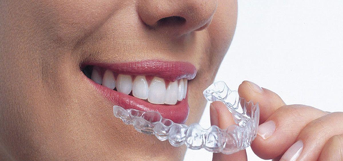 En casi todos los casos se puede practicar la ortodoncia