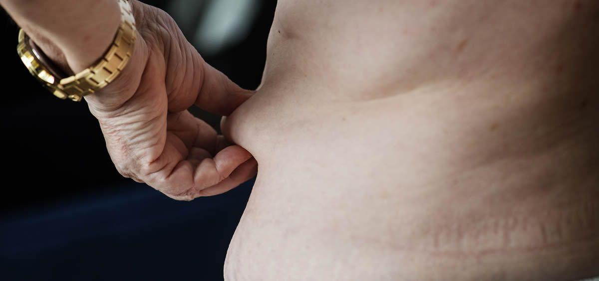 El sobrepeso y la obesidad son uno de los principales problemas en países desarrollados (Foto. Freepik)