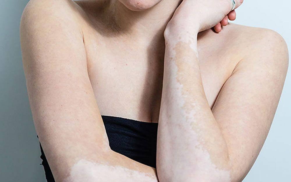 ¿Por qué la piel pierde pigmentación?