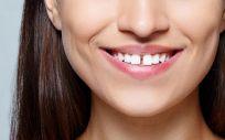 El diastema o separación entre los dientes centrales superiores, se ha convertido en los últimos años en una tendencia
