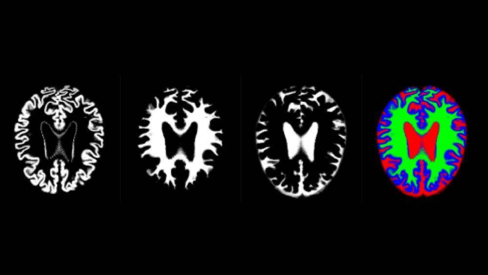 De acuerdo con diferentes estudios, se sabe que aunque es difícil identificar el Alzhéimer en los estadios iniciales, sí se han llegado a detectar ovillos neurofibrilares y depósitos de placa beta amiloide (Aβ).