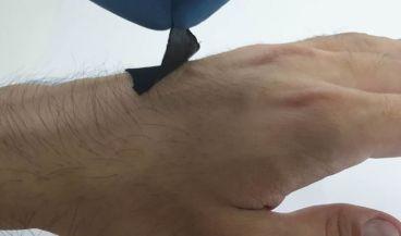 Sensor portátil inspirado en el pulpo/ Foto: ACS Applied Materials and Interfaces