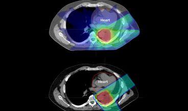 La terapia con protones reduce los efectos secundarios (Universidad de Washington )