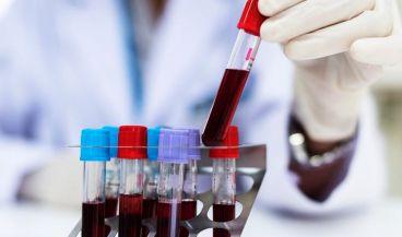 Médico revisando muestras de sangre (Foto. ConSalud)