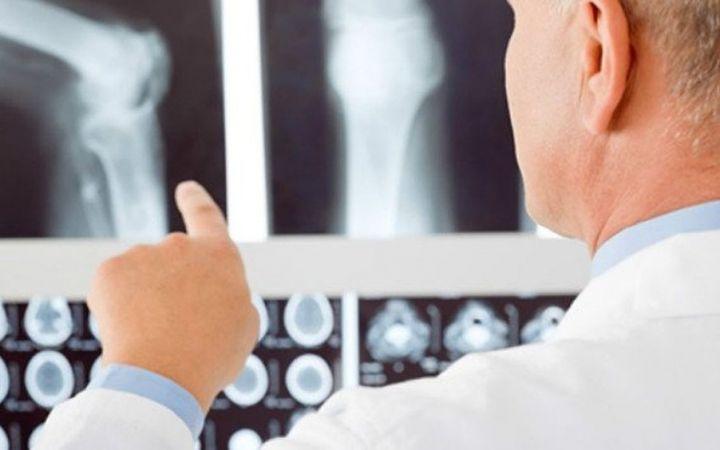 Crean un hidrogel con proteínas para tratar y prevenir infecciones óseas