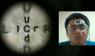Ejemplo de la lente de contacto biomimética utilizada por un paciente (Foto: Universidad de California en San Diego)