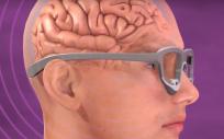 Implante cerebral con cámara un proyector de video (Foto. NIH)