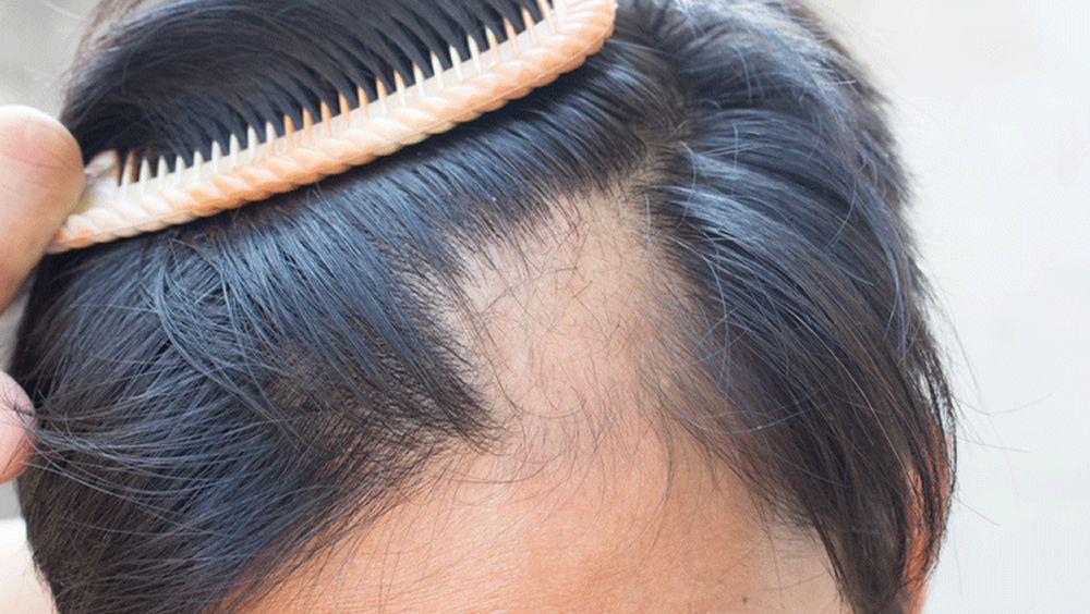 Un casco con láser no invasivo para tratar la pérdida del cabello